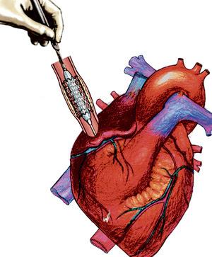 Medicamentos para el corazón. (Ilustración de Elena Águila)
