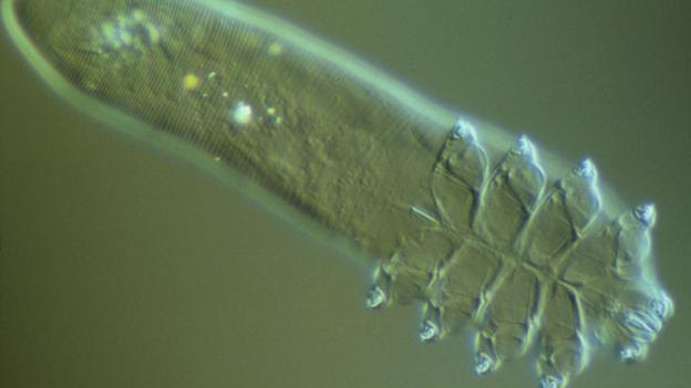 A Demodex folliculorum under a light microscope (Credit: Power and Syred/SPL)