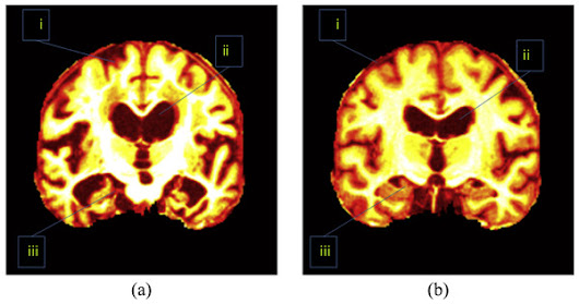 Detection of Alzheimer's disease by displacement field and machine learning