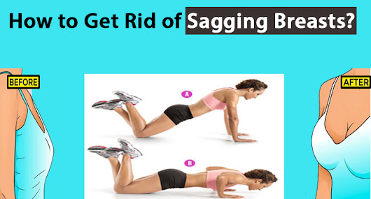 How to Get Rid of Sagging Breasts? - Remedies Lore