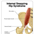 Chiropractor Chandler AZ - Snapping Hip Syndrome