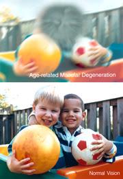 Dos fotos de dos chicos. Las imágenes simulan la pérdida de vista relacionada con AMD (foto de arriba) y la vista normal.