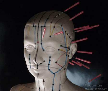 Acupuncture Points Used for Migraine Headaches