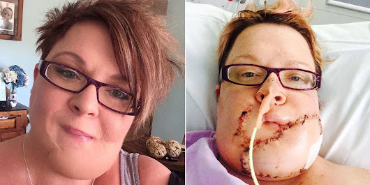 Woman's Terrifying Facebook Photos Show Why You Should Never Disregard Stress Pimples