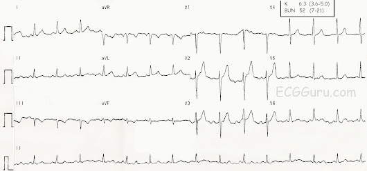 Instructors' Collection ECG: Early Hyperkalemia | ECG Guru - Instructor Resources