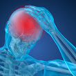Traumatic Brain Injuries – What You Need To Know