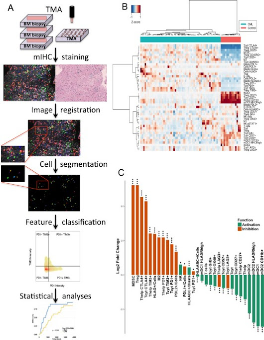 Immune cell contexture in the bone marrow tumor microenvironment impacts therapy response in CML | Leukemia