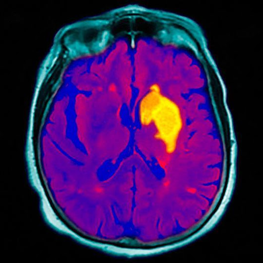 Stroke Incidence Rises for People Under 45, Here's How to Spot