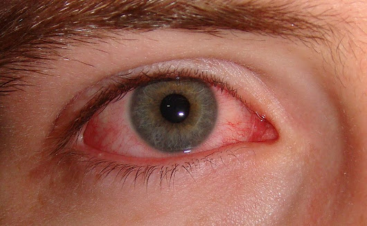 Conjunctivitis (Pink Eye): Are All Forms the Same? | IntroWellness