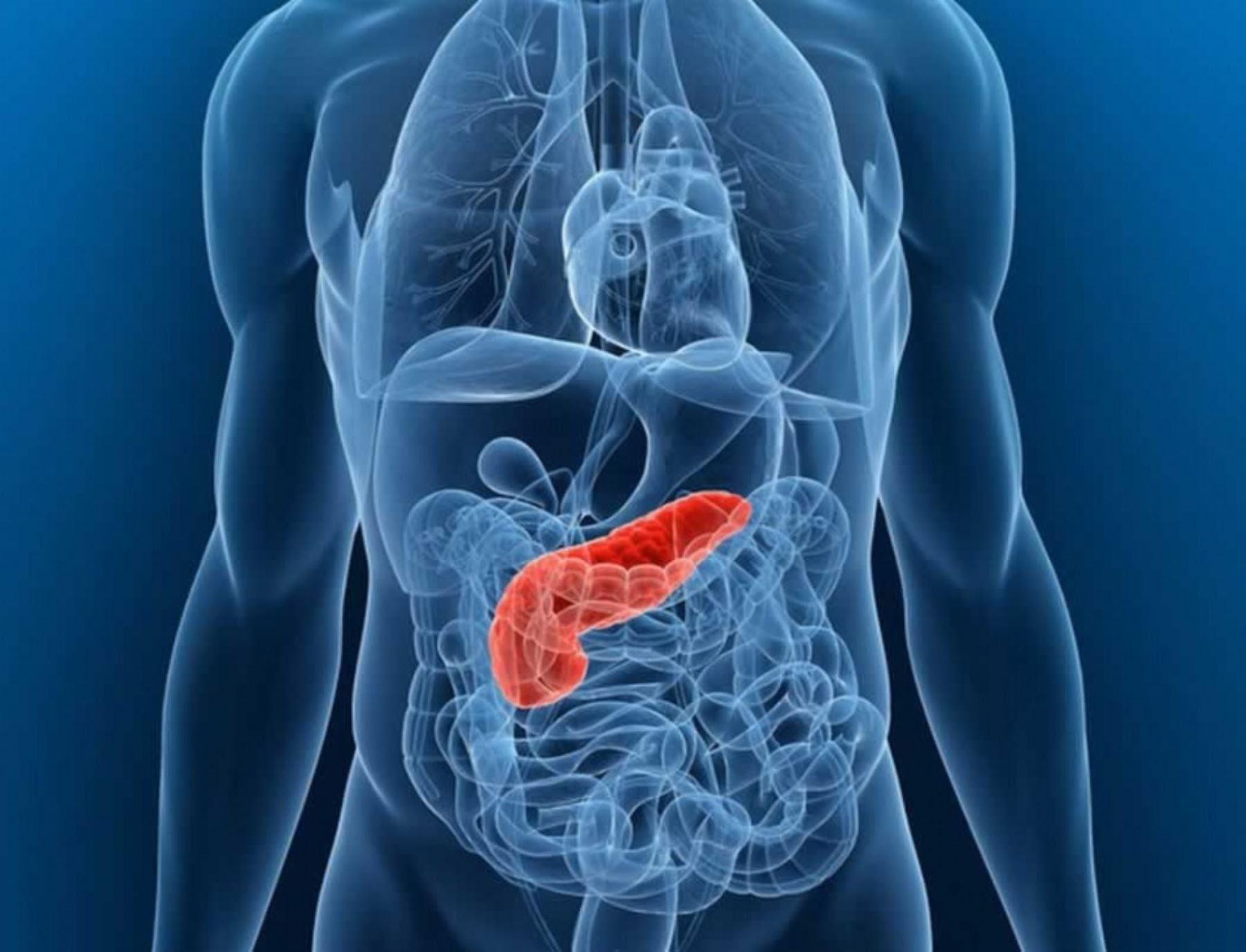 Cancer du pancreas - Symptomes cancer pancreas.