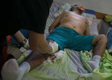 Venezuela's hospitals reduced to 'wartime conditions'