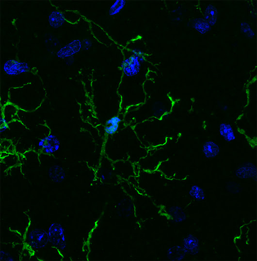 Brain's immune cells linked to Alzheimer's, Parkinson's, schizophrenia - Salk Institute for Biological Studies