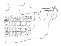 Jaw Diagram