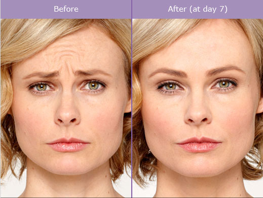 Save up to $100 on Botox or Dysport in March!
