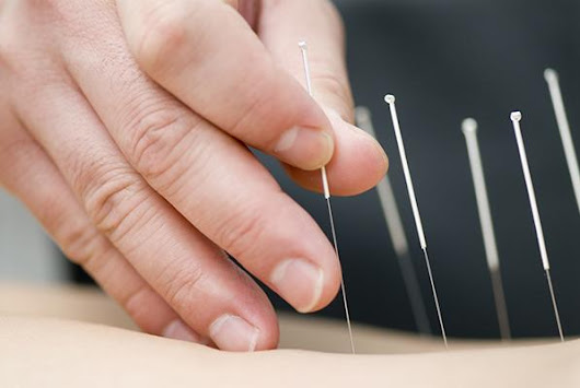 New study suggests acupuncture could aid weight loss