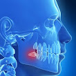 Wisdom Teeth Removal Lincoln - Dr. Andrew Glenn