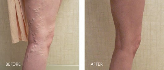 Vein Removal Therapy Los Angeles | Varicose Vein Treatment Santa Clarita | Spider Veins