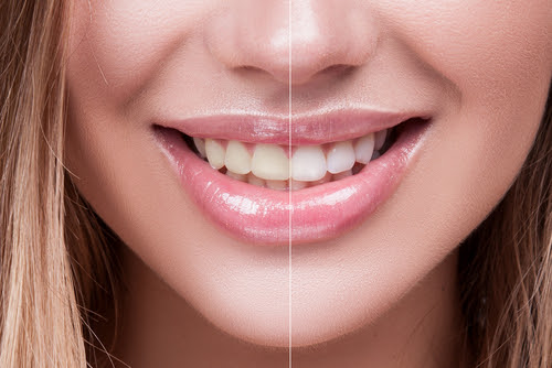 Teeth Bleaching vs. Teeth Whitening