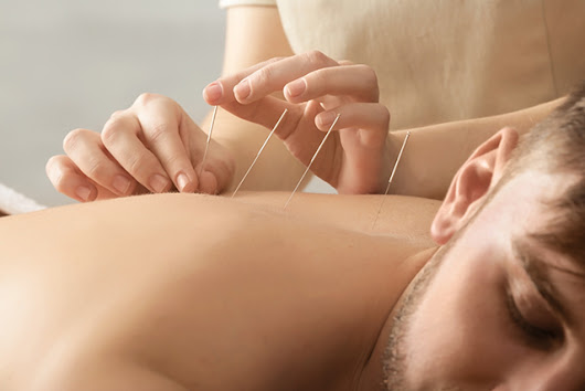 Acupuncture an Effective Alternative Treatment for Cancer-Related Fatigue
