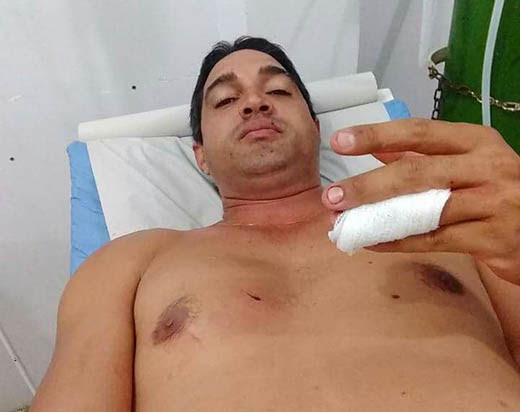 Comerciante foi atingido por golpes de faca em um dos dedos da mão e no peito | Foto: Notícias de Santaluz