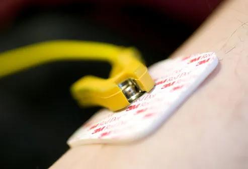 EKG electrode on a patient