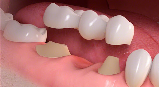 What are Dental Bridges and Its Types