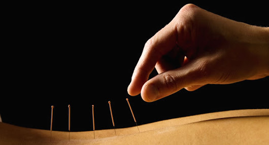 What Are The Benefits Of Acupuncture? – Health Digests