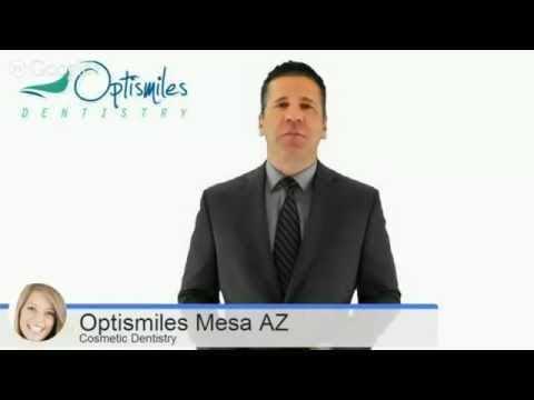 Cosmetic Dentistry in Mesa Arizona · optismiles · Storify