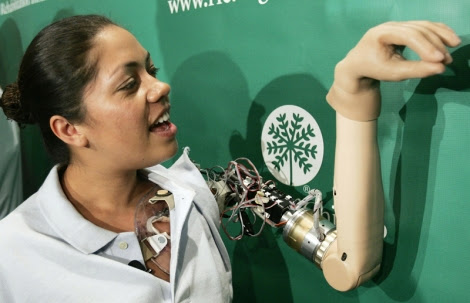 "First ""Bionic Woman"" Demonstrates Thought-Controlled Prostheses"