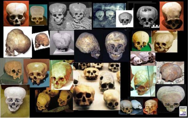 "Image illustrating one of the ""types"" of elongated skulls"