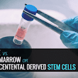 Adipose vs. Bone Marrow or Placental Derived Stem Cells - Piedmont Physical Medicine & Rehabilitation, P.A.