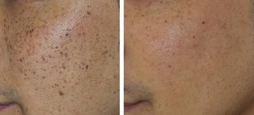 Dr Wan And Dr Fahrina Skin Centre Fotona Qxmax The