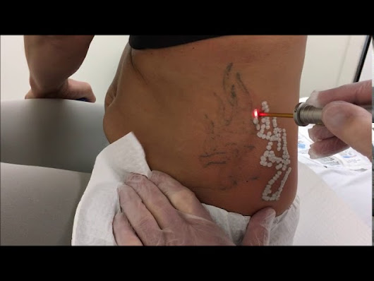 Detroit Tattoo Removal | Michigan Center for Cosmetic Surgery