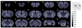 New Imaging Approach Maps Whole Brain Changes From Alzheimer's: Mouse Study