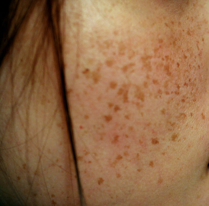 EXPERIENCING SKIN DISCOLORATION DURING PREGNANCY? | keys ...