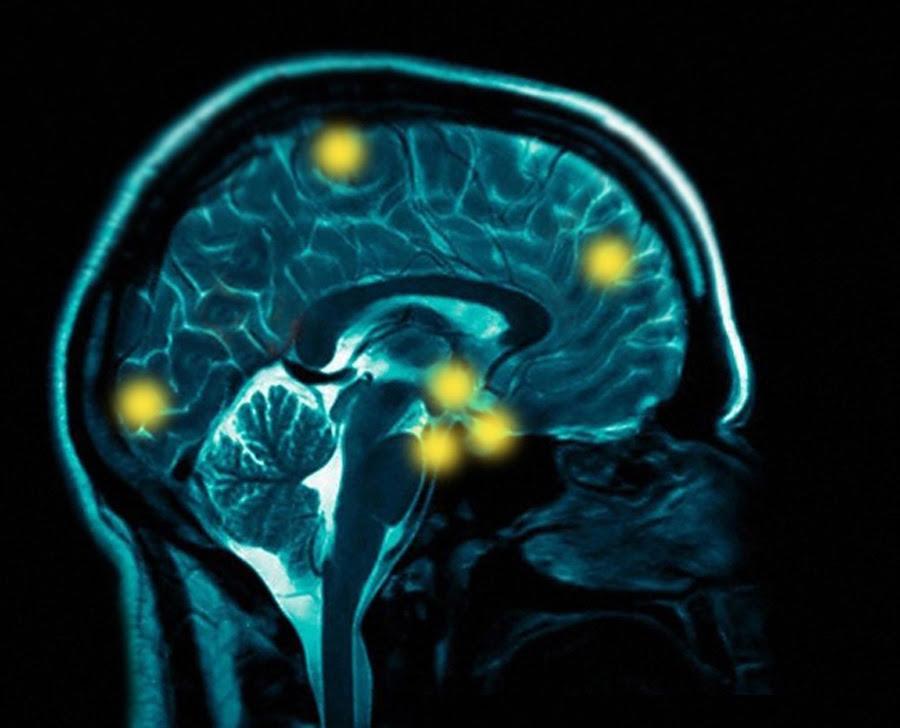 http://www.sharpbrains.com/wp-content/uploads/2008/06/sfo-brain-scan-final-2.JPG