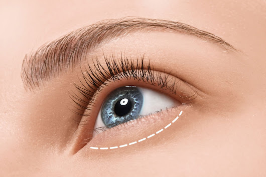 Pittsburgh, PA Cosmetic Lower Eyelid Surgery - Under Eye Circles Blepharoplasty