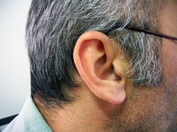 orejas varias