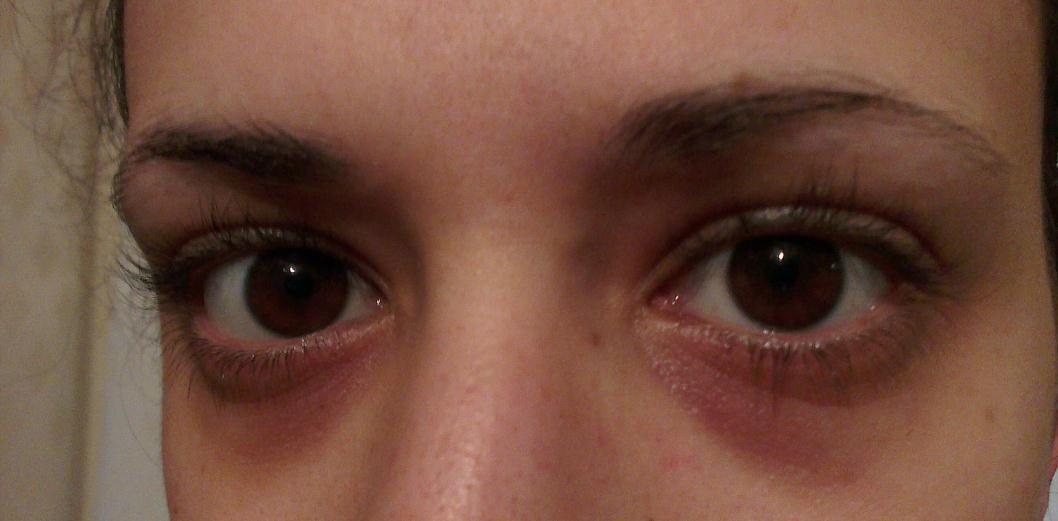 how to tighten loose skin under eyes