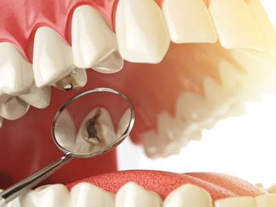 News - Small molecule inhibitor prevents or impedes tooth cavities in a preclinical model
