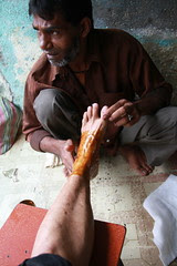 Applying the hot paste .. called lep on my fractured leg by firoze shakir photographerno1