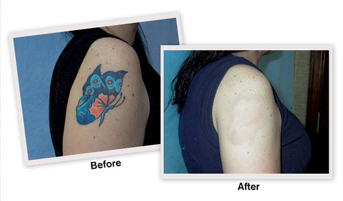 Laser Tattoo Removal Cost In India Best Tattoo Ideas