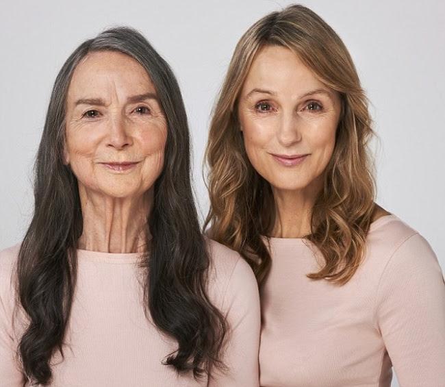 Genética Pura Increíbles Imágenes Que Revelan El Parecido Entre