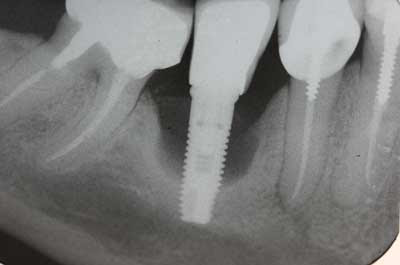 Going abroad for dental implants may not be a bargain -
