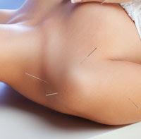 acupunctureceuslymphedema