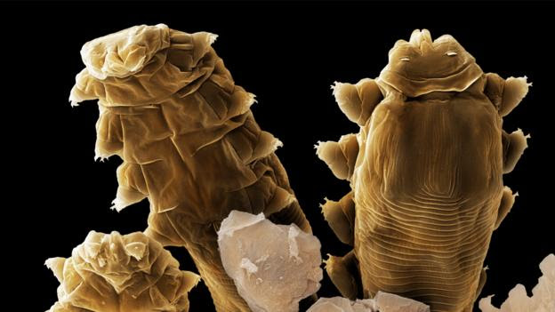 The heads and legs of Demodex folliculorum (Credit: Power and Syred/SPL)