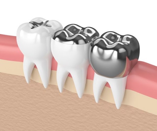 Do Amalgam Fillings Contain Mercury? Why Being Proactive About Dental Fillings and Your Health is a Great Idea