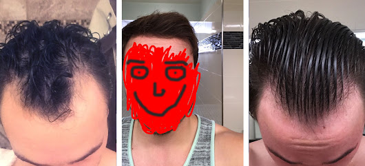Is it Really Possible to Regrow Your Hair? This Guy Did.