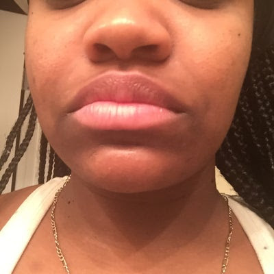 What are the dark spots around my mouth are and how can I ...