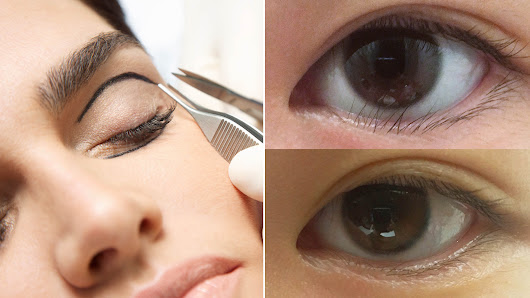 This Woman Had Lower Eyelid Surgery, and It Completely Changed Her Life